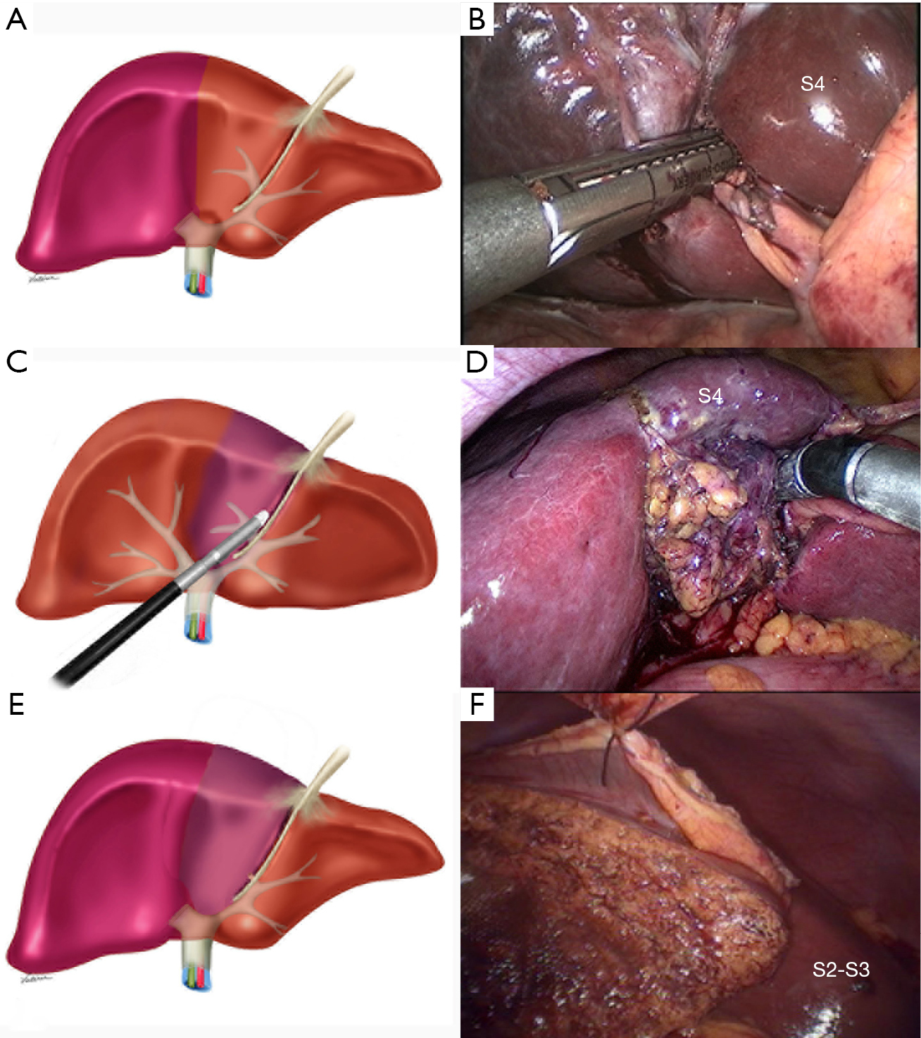 Extended Laparoscopic Liver Resection Initial Experience And Review