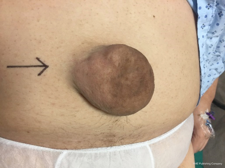 Umbilical hernia: when and how - Maia - Annals of